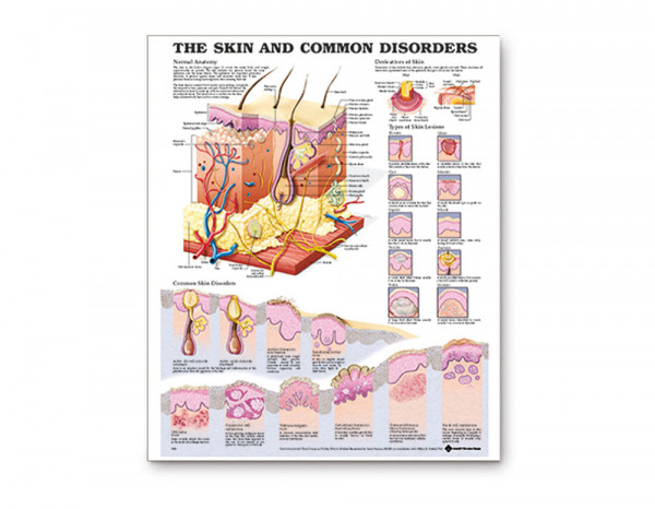 Chart, skin and common disorders